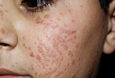 Flache Warzen im Gesicht