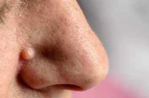 Warze an der Nase (Gesicht)